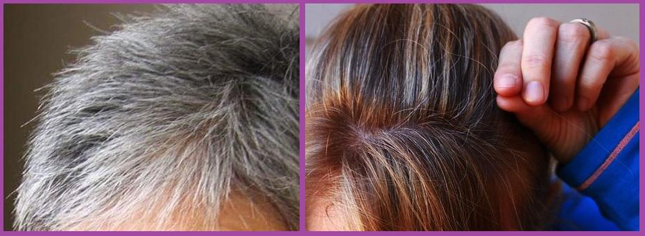 Si te arrancas una cana, te salen siete más- mitos sobre el pelo
